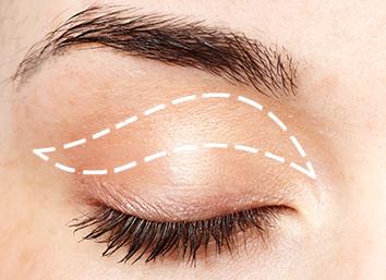 Eyelid Blepharoplasty Surgery By Dr Monisha Kapoor In Delhi, India
