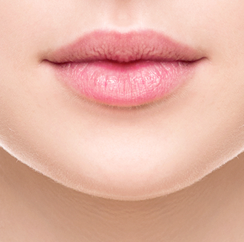Lip Augmentation Surgery By Dr. Monisha Kapoor In Delhi, India