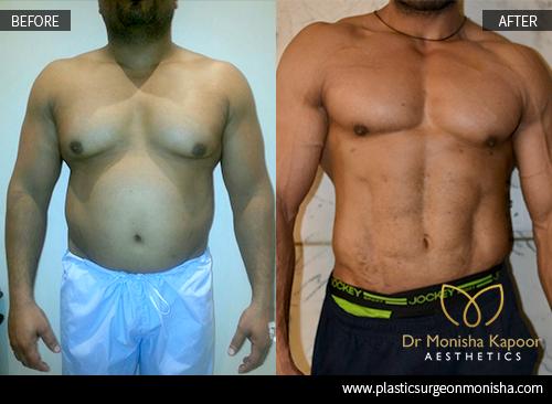 Male abdominal etching || blog manicurex ru
