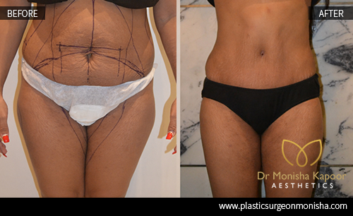 Liposcution Treatment In Delhi By Dr. Monisha Kapoor
