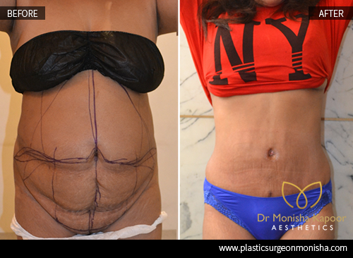 Mommy Makeover Surgery and Treatment in Delhi