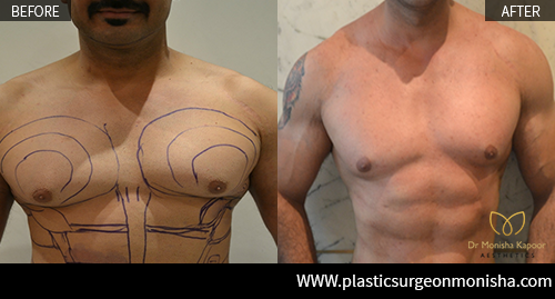 Male Chest Reshaping By Dr. Monisha Kapoor In Delhi, India
