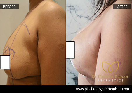 Breast Lift Cosmetic Surgery By Dr. Monisha Kapoor In Delhi, India