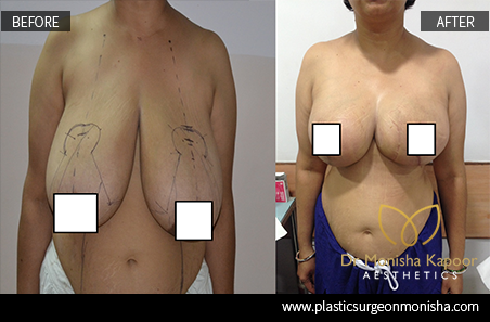 Breast Reduction Surgery By Dr. Monisha Kapoor In Delhi, India