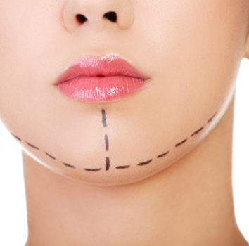 DoubleChinRemoval Surgery By Dr. Monisha Kapoor In Delhi, India
