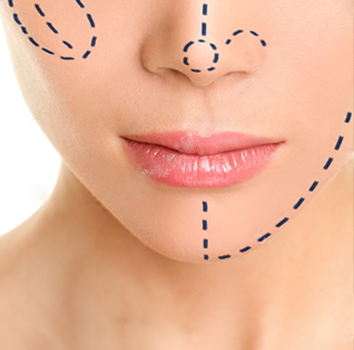 Face Thinning Surgery By Dr. Monisha Kapoor In Delhi, India