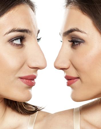 Nose Surgery In Delhi, Rhinoplasty Treatment By Monisha Kapoor