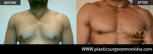 Male ChestReshaping By Dr. Monisha Kapoor In Delhi, India