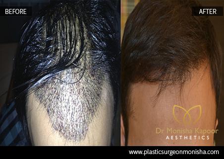 Hair Transplant In Delhi, India By Dr. Monisha Kapoor